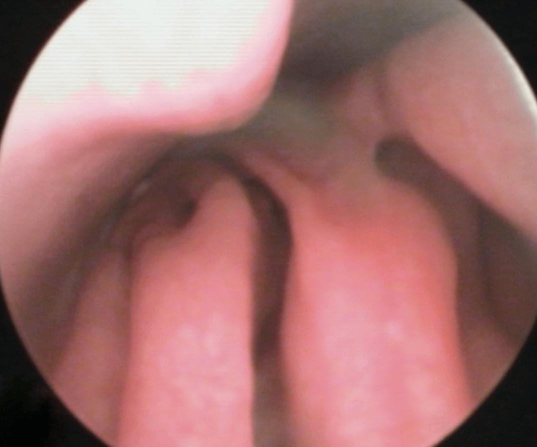 normale neus bij rhinoscopie
